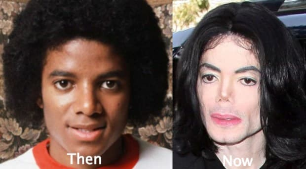 Examples Of Plastic Surgery Before And After Books photo - 1