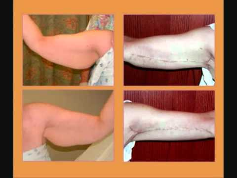 Excess Skin Plastic Surgery Before And After photo - 1