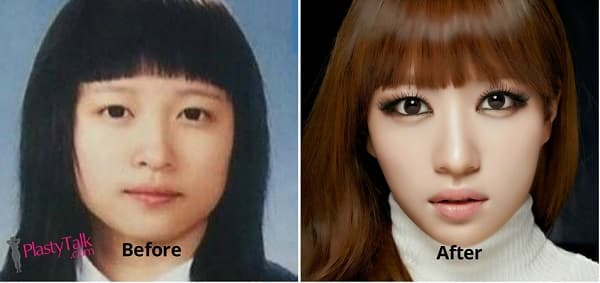 Exid Solji Before And After Plastic Surgery photo - 1
