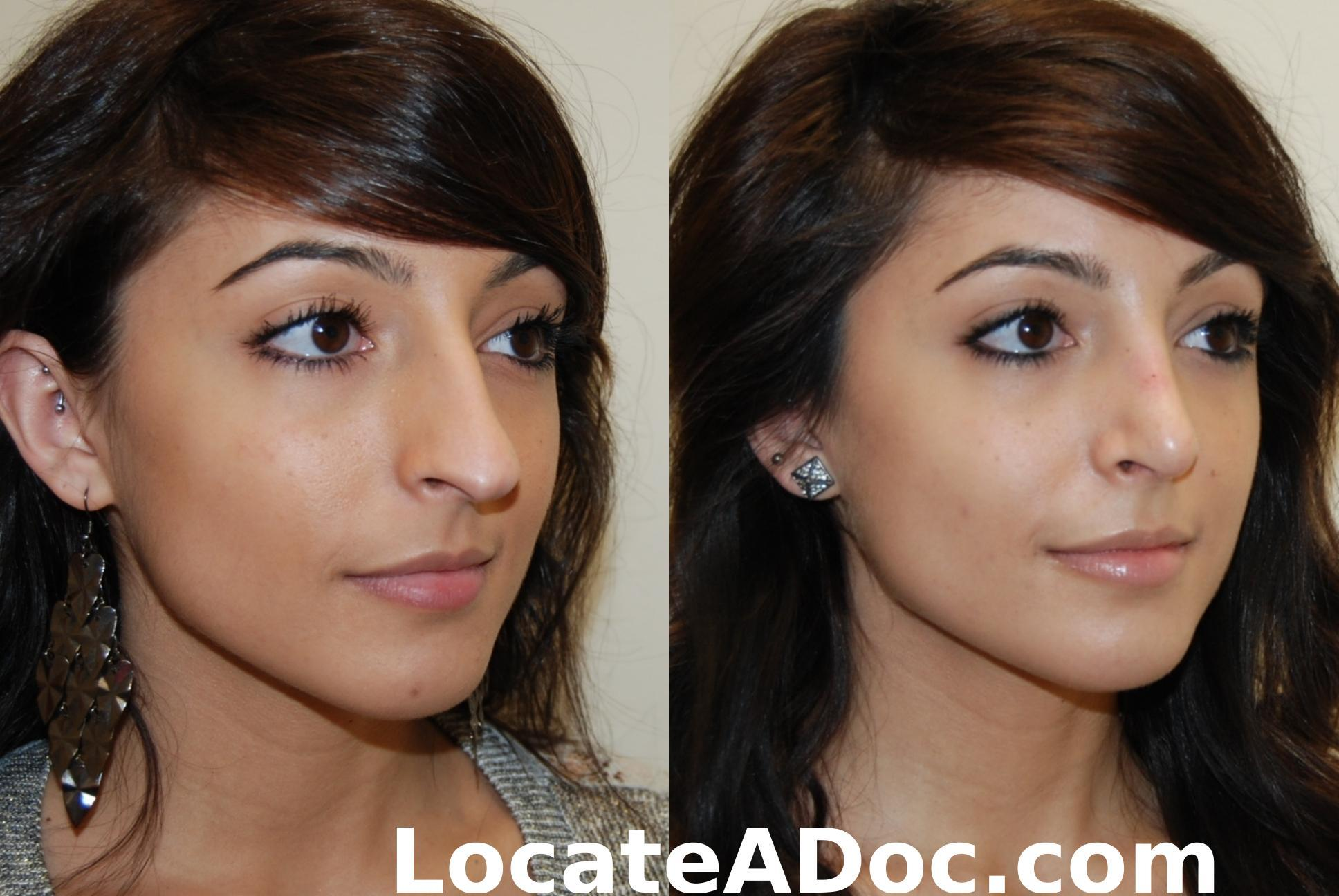 Extreme Plastic Surgery Before And After Pictures photo - 1