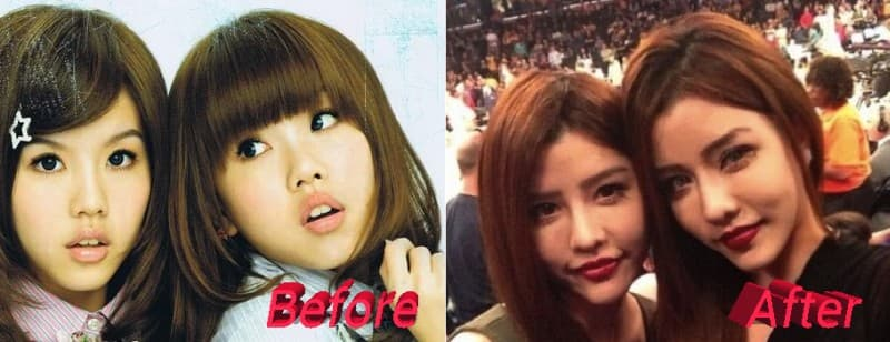 Eye Plastic Surgery Before And After photo - 1