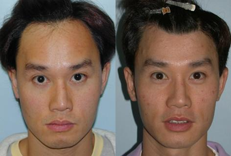 Eyebrow Plastic Surgery Before And After photo - 1