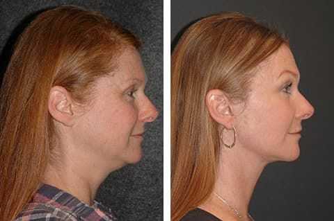Facial Plastic Surgery Before And After Photos photo - 1