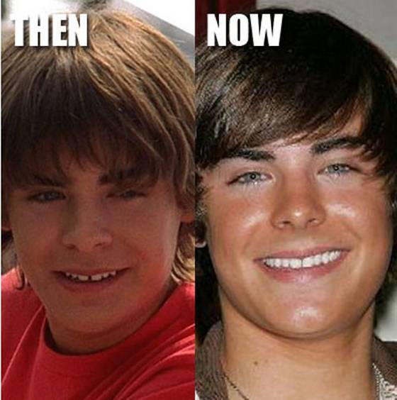 Famous Celebrities Before And After Plastic Surgery photo - 1