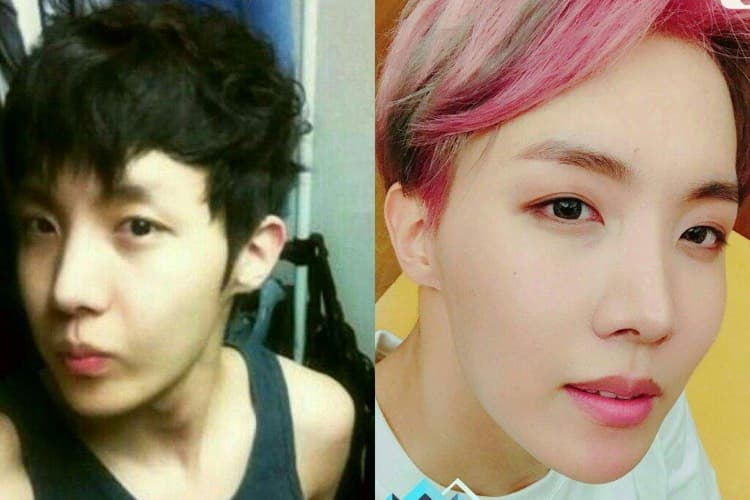 Famous Korean Plastic Surgery Before And After photo - 1