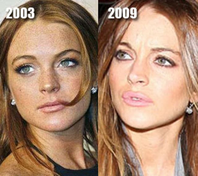 Famous People Before And After Plastic Surgery photo - 1