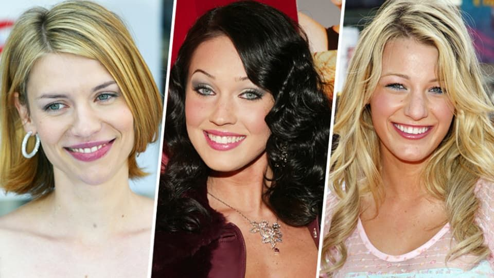 Famous Stars Before And After Plastic Surgery photo - 1