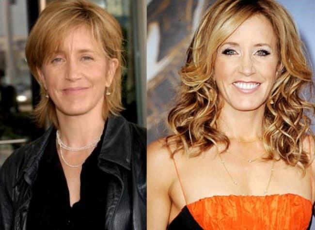 Felicity Huffman Plastic Surgery Before And After photo - 1