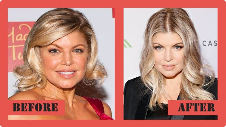 Fergie Photos Before Plastic Surgery photo - 1