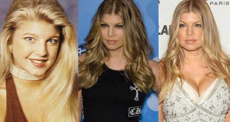 Fergie Plastic Surgery Before And After photo - 1