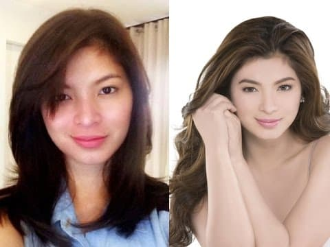 Filipino Celebrities Plastic Surgery Before And After Pictures photo - 1