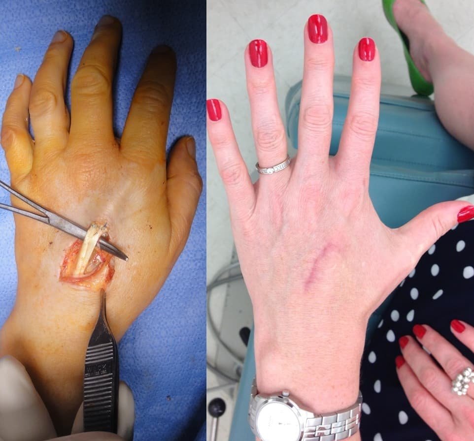 Finger Plastic Surgery Before And After photo - 1