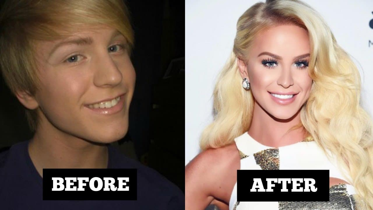 First Transgender Woman Plastic Surgery Before And After photo - 1