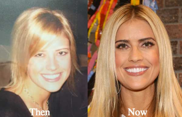 Flip Or Flop Christina Before Plastic Surgery photo - 1