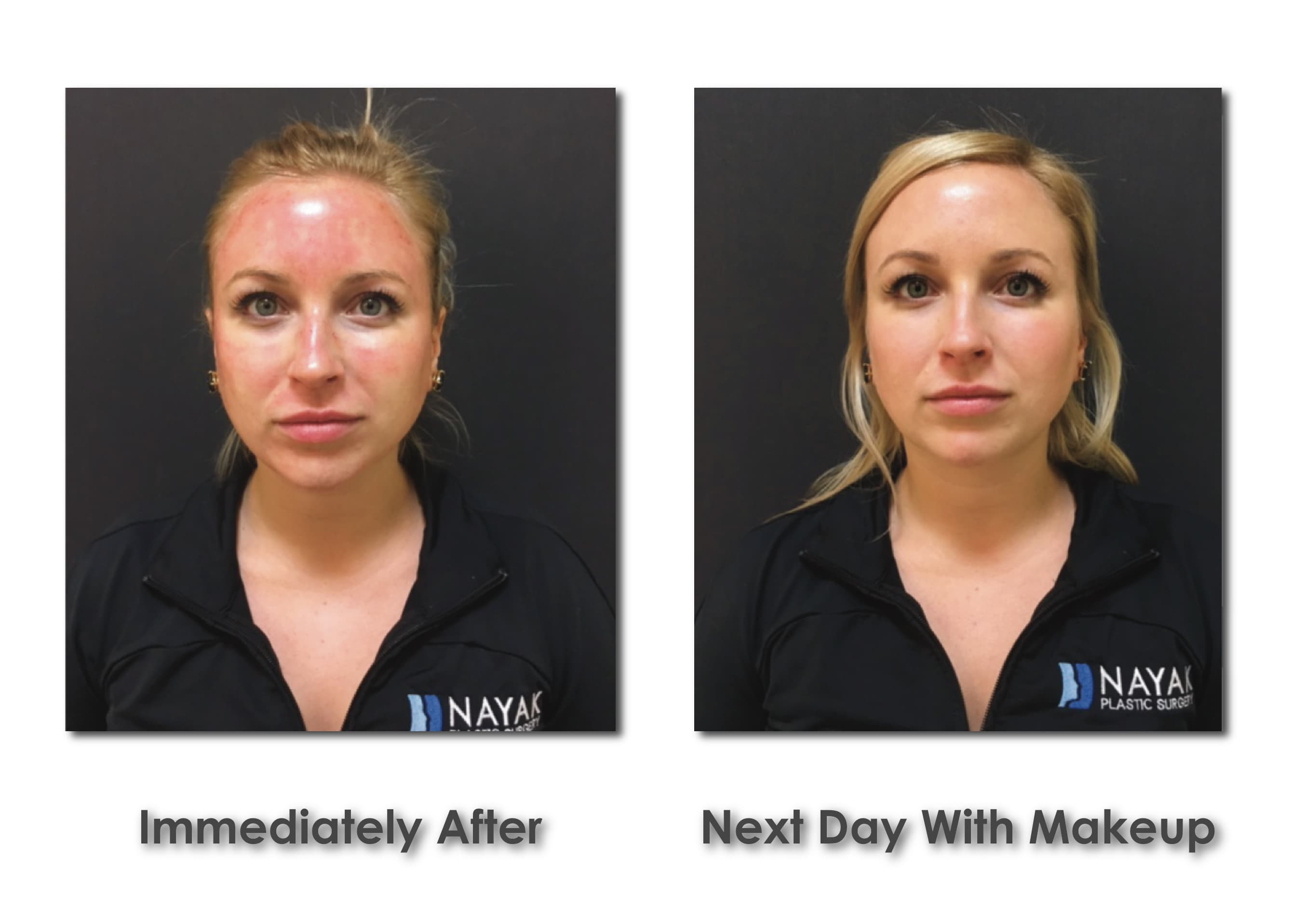 Forehead Plastic Surgery Before After photo - 1