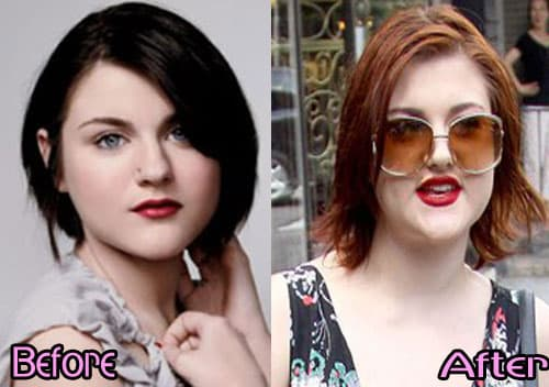 Frances Bean Cobain Plastic Surgery Before And After photo - 1