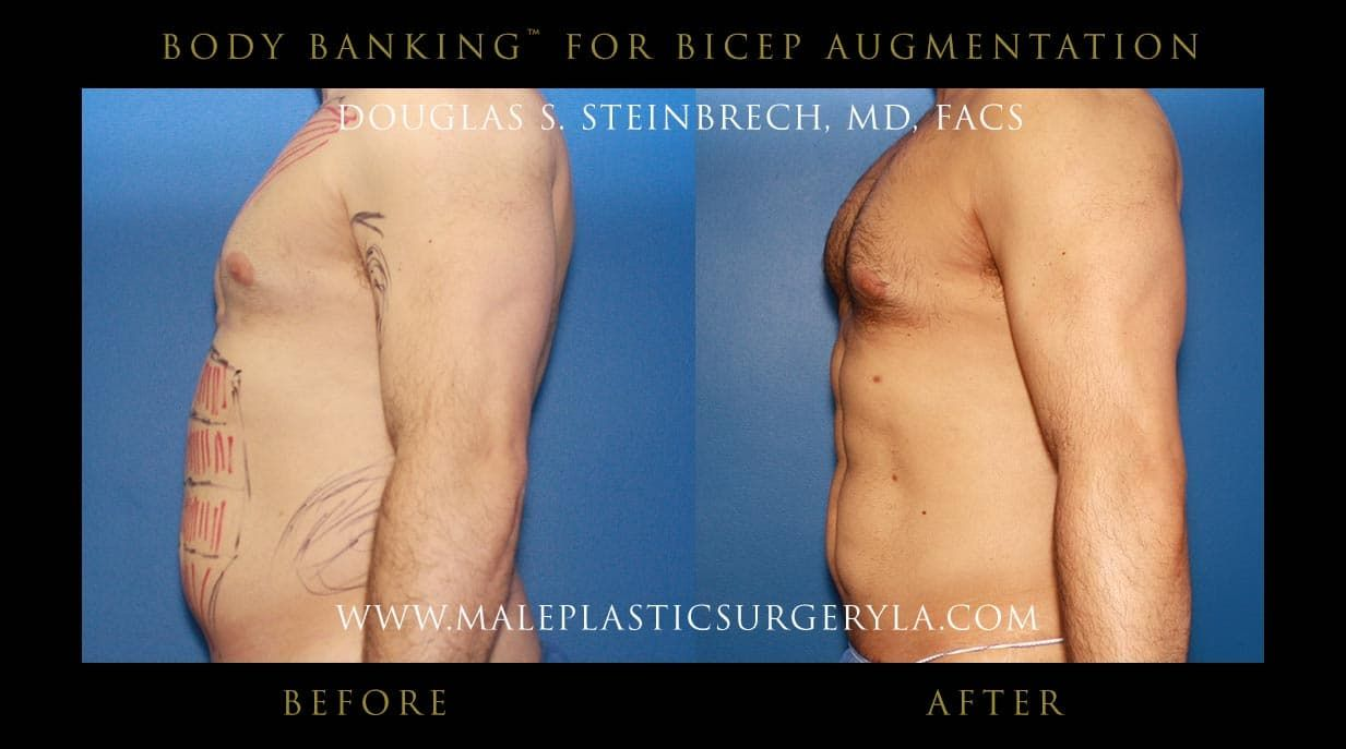 Full Body Plastic Surgery Before And After photo - 1