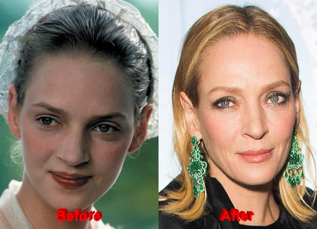 Gabrielle Anwar Plastic Surgery Before After Pictures photo - 1