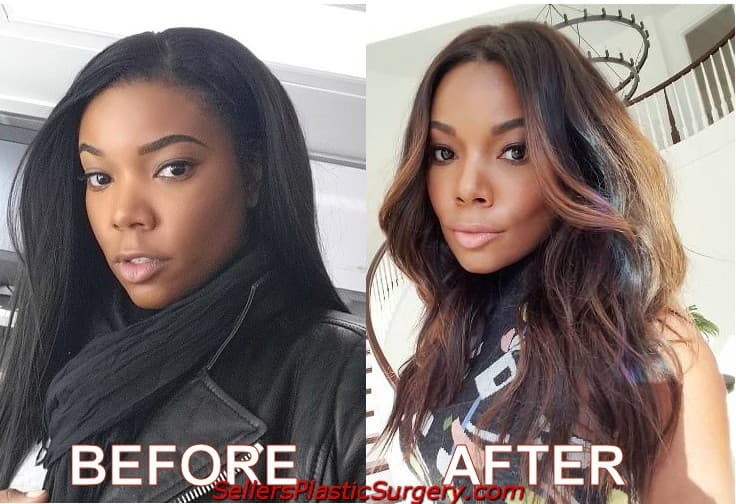 Gabrielle Union Plastic Surgery Before And After photo - 1