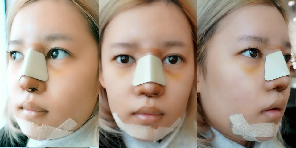 Gangnam Plastic Surgery Before And After photo - 1