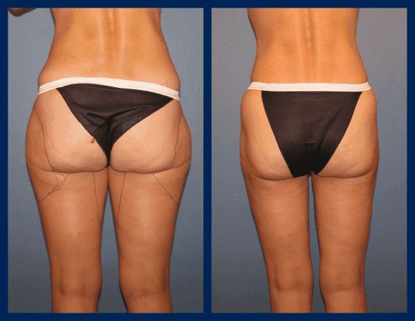 Genital Plastic Surgery Before And After photo - 1