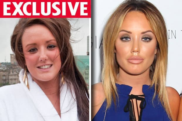 Geordie Shore Plastic Surgery Before And After photo - 1
