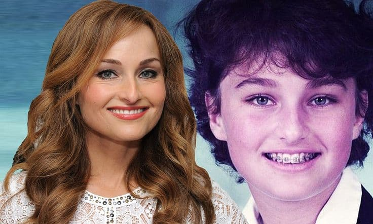 Giada De Laurentiis Before And After Plastic Surgery photo - 1