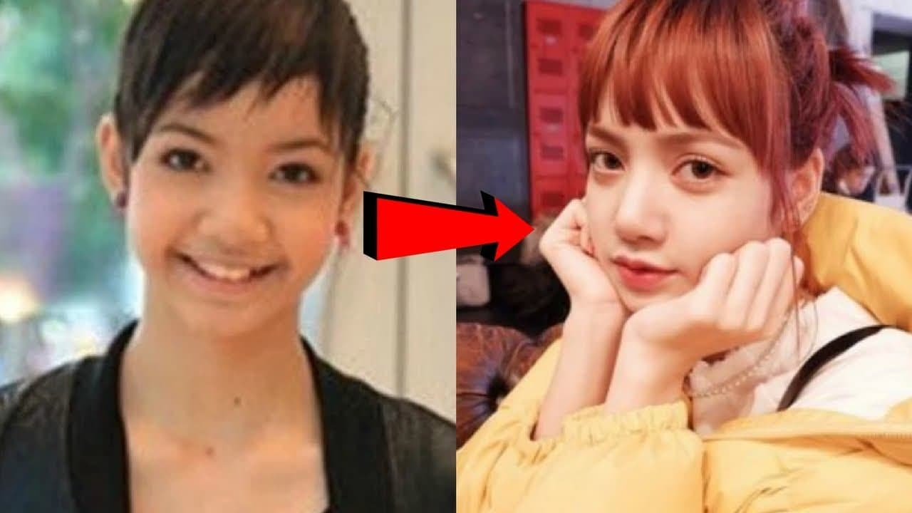 Girls Generation Plastic Surgery Before And After photo - 1