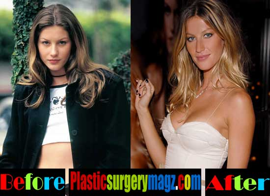 Gisele Bündchen Before And After Plastic Surgery photo - 1