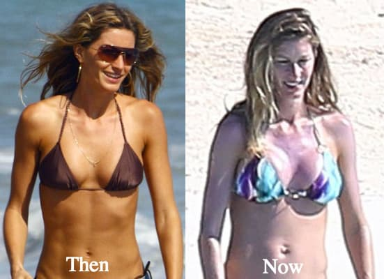 Gisele Before And After Plastic Surgery photo - 1