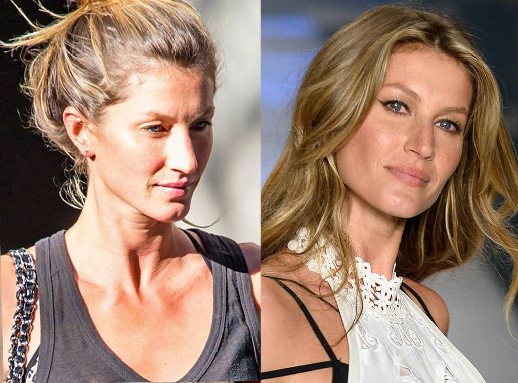 Gisele Plastic Surgery Before After photo - 1