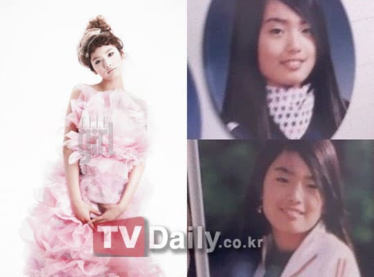 Gna Before And After Plastic Surgery photo - 1