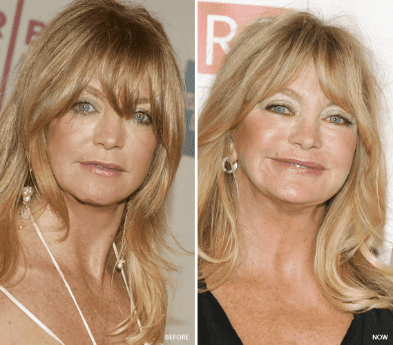 Goldie Hawn Before Plastic Surgery photo - 1