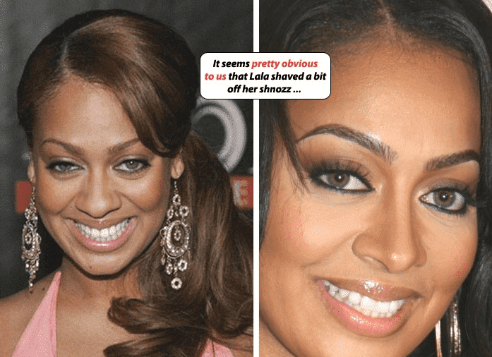 Good Celebrity Plastic Surgery Before And After photo - 1
