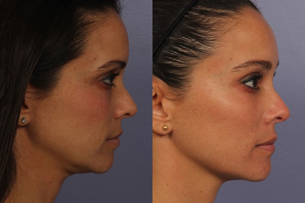 Good Plastic Surgery Before And After photo - 1