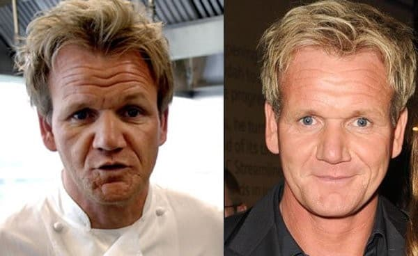 Gordon Ramsay Before And After Plastic Surgery photo - 1
