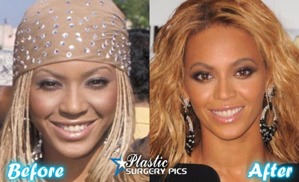 Greta Before And After Plastic Surgery photo - 1