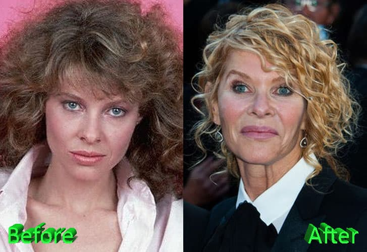 Greta Van Susteren Plastic Surgery Before And After photo - 1