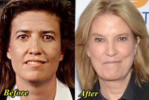 Greta Van Sustren Before Plastic Surgery photo - 1