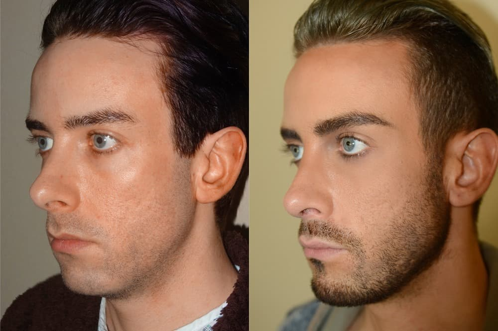 Guys Plastic Surgery Before And After photo - 1