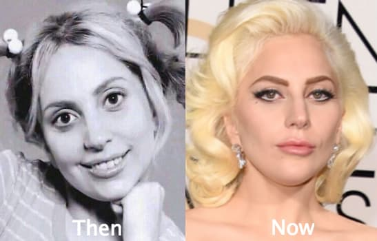 Gwen Stefani Before After Plastic Surgery photo - 1