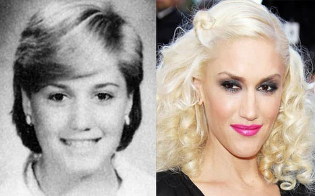 Gwen Stefani Plastic Surgery Before After photo - 1