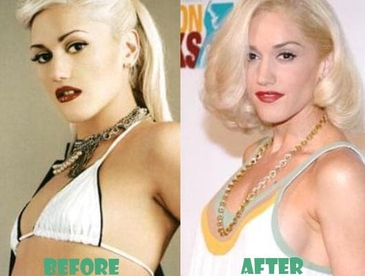 Gwen Stefani Plastic Surgery Before After 2017 photo - 1