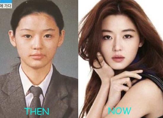 Ha Yeon Soo Before Plastic Surgery photo - 1