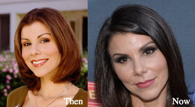 Heather Bilyeu Before And After Plastic Surgery photo - 1