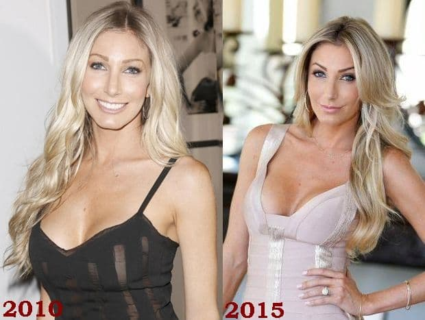 Heather From Million Dollar Listing Plastic Surgery Before And After photo - 1
