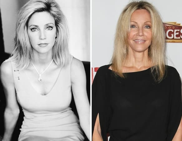 Heather Locklear Plastic Surgery Before And After photo - 1
