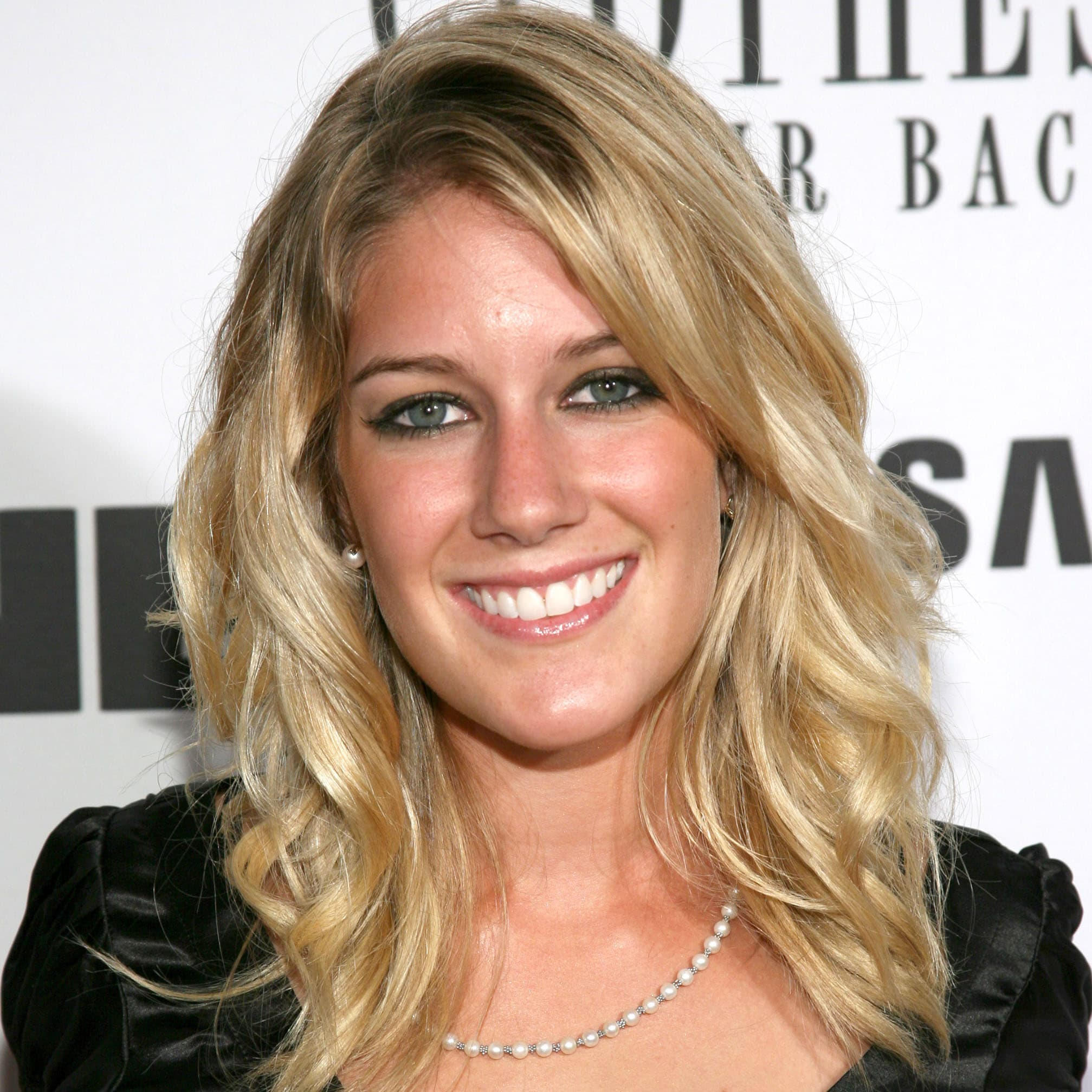 Heidi From The Hills Before And After Plastic Surgery photo - 1