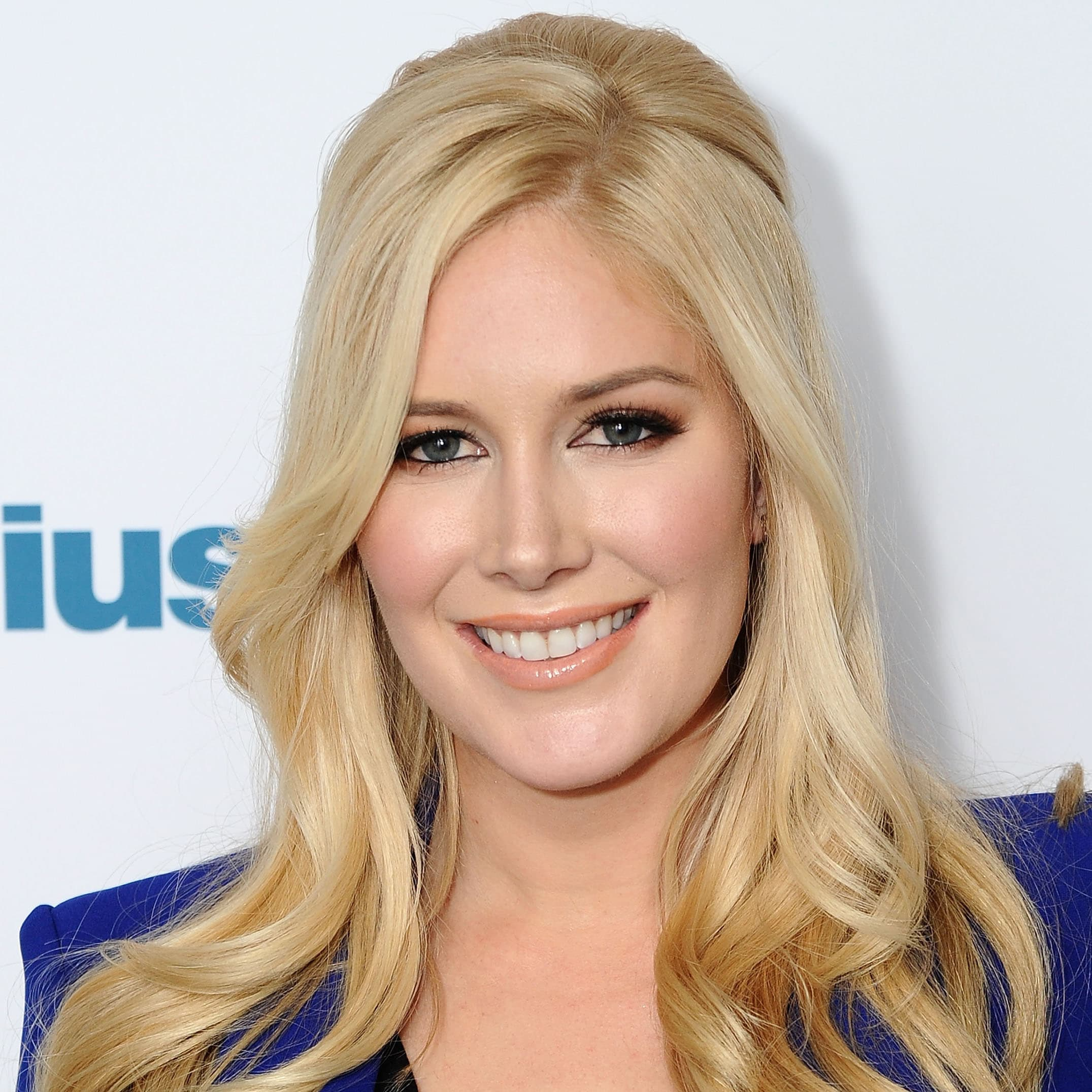 Heidi Montag Plastic Surgery Before And After Pics photo - 1