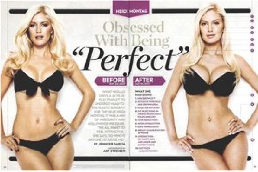 Heidi Pratt Before And After Plastic Surgery photo - 1